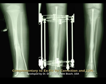 Fassier Duval - Kit for Osteogenesis Imperfecta Tibial nailing - Tibial Pseudoarthrosis